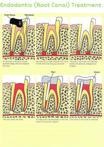 root-canal-scan
